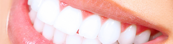 header-porcelain-veneers