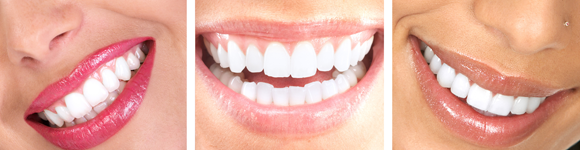 header-teeth-whitening-01